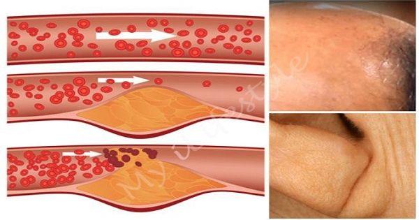 Закупорка коронарных артерий - это очень опасно! — Шаг к Здоровью