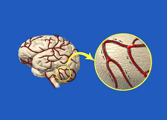 Как почистить сосуды головного мозга народными