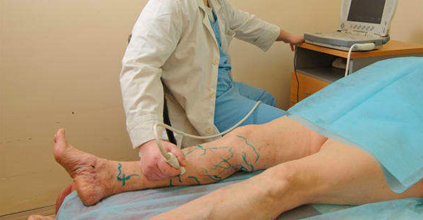 Какой врач по варикозу