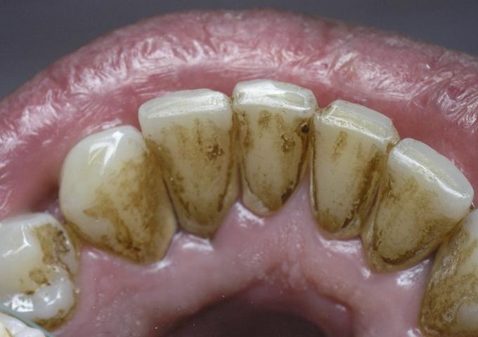 Сода и перекись от зубного камня