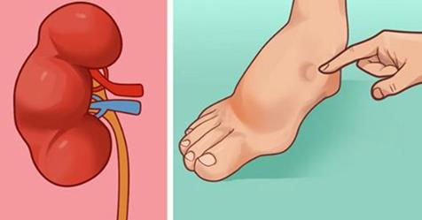Ваше тело посылает вам эти признаки за месяц до инсульта ... Не игнори