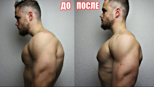 Техника исправления кифоза грудного отдела позвоночника