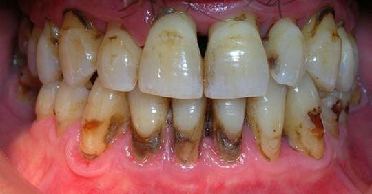 Когда вы увидите этот метод, вы будете сердиться на своего стоматолога