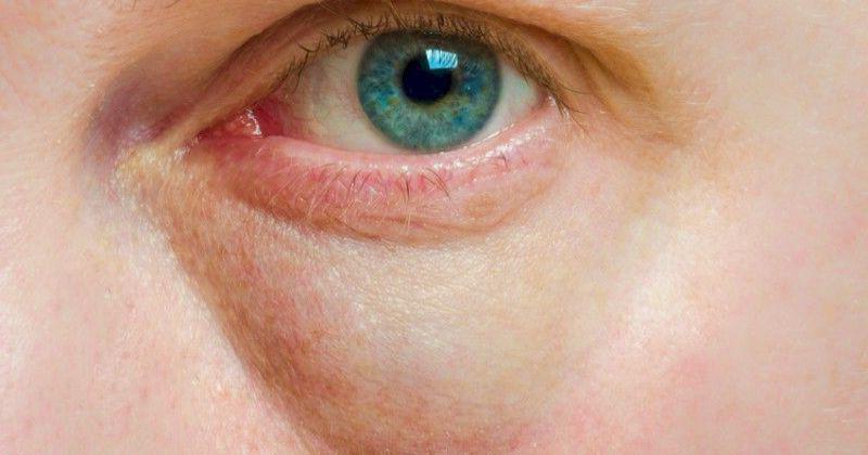 Как убрать слезные мешки под глазами